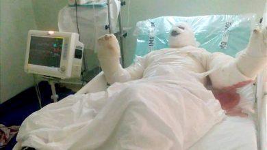 صورة مواطن يضرم النار في جسده احتجاجا على حجز عربته بسيدي بنور